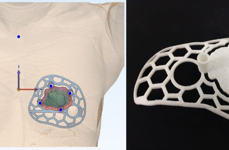 유방암 정밀 수술 3D 프린터가 돕는다