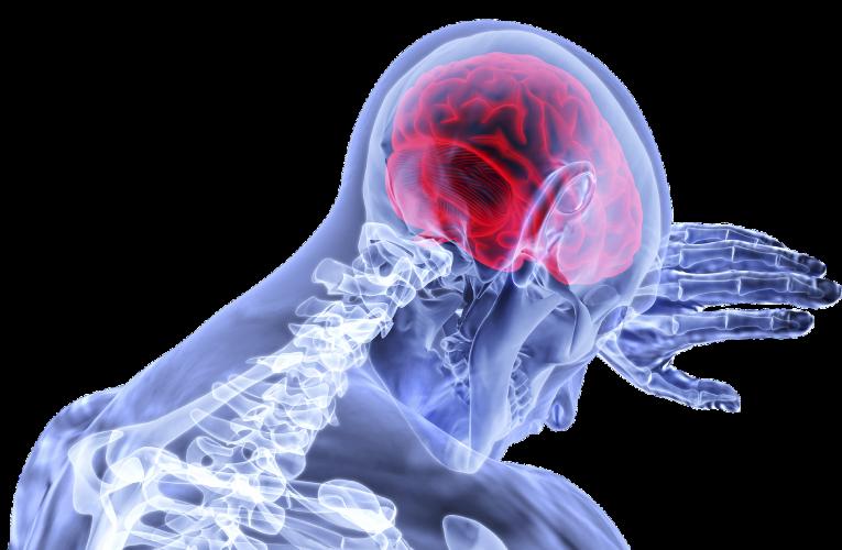 머리 속 시한폭탄 '뇌동맥류' 완치 방법은?