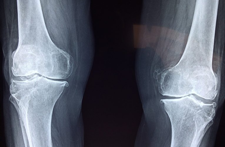 노년 뼈 건강, 골다공증 예방부터
