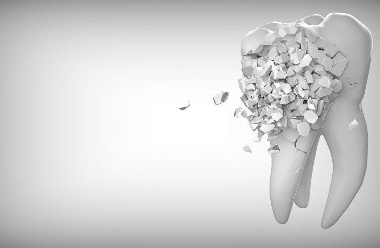 내 아이 치아 교정 고민해야 할 조건 6가지