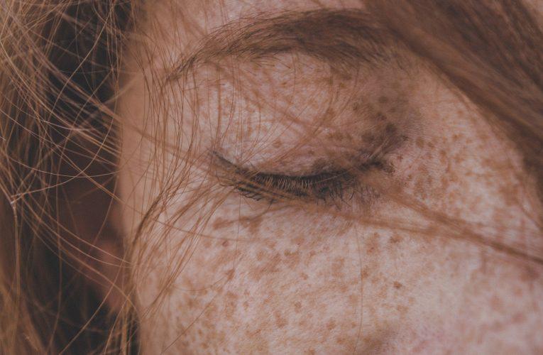 피부암 중 가장 치명적인 암, 흑색종 치료법은?
